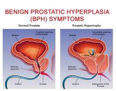 How To Cure Benign Prostatic Hyperplasia? @CmcMohali