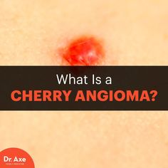 Cherry angioma - Dr. Axe http://www.draxe.com #health #holistic #natural
