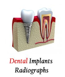 tooth implant cost belfast