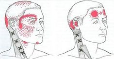 Migraine attacks,can last from a couple of hours to couple of days and can be caused by neurological, environmental, and genetic factors.Over 300 million people worldwide suffer from migraine headaches( of men and of women) from which 20 milli Severe Headache, Tension Headache, Referred Pain, Migraine Attack, Jaw Pain, Trigger Point Therapy, Vitamin Deficiency, Headache Remedies, Light Sensitivity