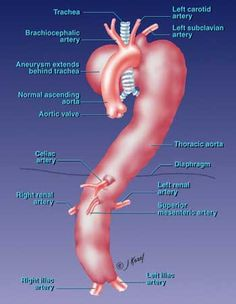 Images of a thoraco-abdominal aneurysm. Heart Care, Vascular Disease, Nurse Stuff, Radiology, Natural Disasters, Ems, Infographics, Surgery, Ninja