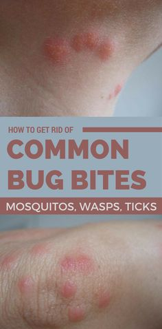 How To Get Rid Of Bed Bug Bites Overnight Treat Surot Bite Pinterest Bed Bugs Bites Bug