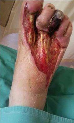 Mercury Exposure from CFL Bulb Foot Injury