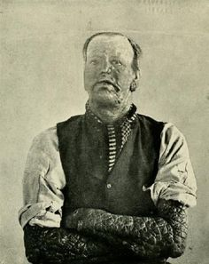 The Leper (Leprosy or Hansen's disease). It is caused by Mycobacterium leprae, a bacillus that multiplies very slowly and mainly affects the skin, nerves, and mucous membranes. The organism has never been grown in bacteriologic media or cell culture, but has been grown in mouse foot pads.