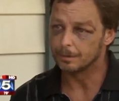 Father Calls 911 because his Son just Killed Himself, Police Show up and Beat and Arrest Him
