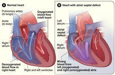 Tetralogy of Fallot is a congenital heart defect. This is a condition of the heart's structure that's present at birth. Congenital heart defects alter the norma Cardiac Nursing, Pediatric Nursing, Neonatal Nursing, Tetrology Of Fallot, Hole In Heart, Heart Symptoms, Ventricular Septal Defect, Heart Valves, Chd Awareness