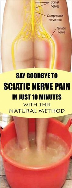 Say Goodbye To Sciatic Nerve Pain In 10 Minutes With This Natural Method - Page 7 of 7 - Viral Health Sciatic Pain, Sciatic Nerve, Nerve Pain, Herbal Remedies, Health Remedies, Home Remedies, Natural Remedies, Sciatica Relief, Pain Relief