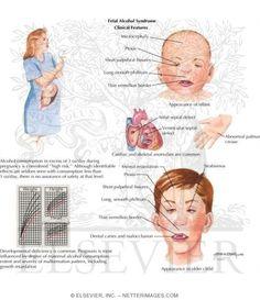 Fetal alcohol syndrome essay conclusion