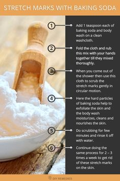 How to use Baking Soda for Stretch Marks: Is these ugly stretch marks on your stomach and arms embarrassing you and keeping you away from wearing your favorite dress? You just follow the below-mentioned baking soda methods to fade these stretch marks on the skin.