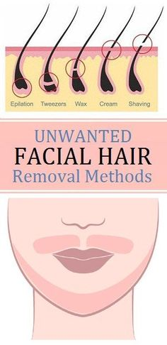 There may be number of solution to remove facial hair such as plucking, waxing, threading and bleaching etc. By using this no doubt you can get rid of it for temporary duration but there is lots of drawbacks after that. Such as by saving and waxing leads to faster hair growth and bleaching tends to …