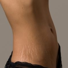 Home Remedies For Removal Of Stretch Marks