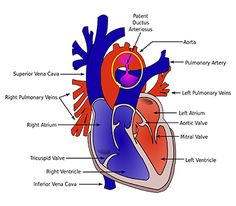 About Patent Ductus Arteriosus Device Closure Catheterization - Cost, Procedure, Doctors