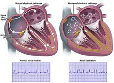 Houston Methodist Receives $3.5 Million NIH Grant For Study of New Therapeutic Method of Atrial Fibrillation. #NIH #biotech