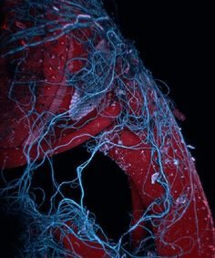 Image of the Day: Tangled Web Spider web threads wrapped around an insect