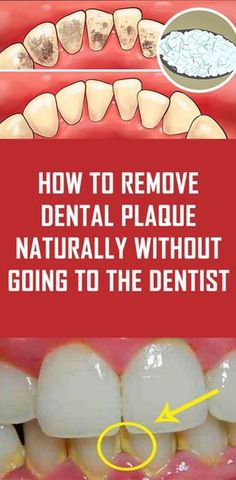 How to Remove Dental Plaque Naturally without Going to the Dentist