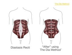 5 Ways to Flatten Post-Pregnancy Abs: using exercises, food, and even a support system (like a corset) to help the abs heal. They say it's never too late to heal diastasis recti (see picture).