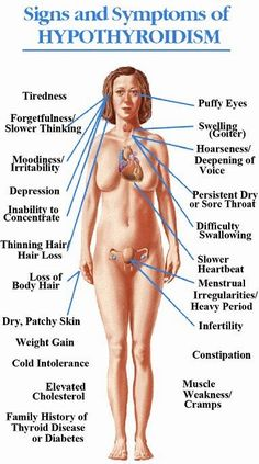 About Hypothyroidism A Common Health Problem By hypothyroidism, the thyroid gland is producing too less hormones to stimulate the metabolism or the body is not able to utilize the hormones. The lack of thyroid hormones slows down the Thyroid Issues, Thyroid Hormone, Thyroid Disease, Thyroid Health, Thyroid Gland, Low Thyroid, Thyroid Cancer, Disease Symptoms, Hormone Imbalance