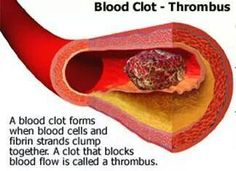 """Clot-Me-Not"" Blend for reducing blood clots: 2 drops cinnamon, 2 drops helichrysum, 1 drop cypress, 1 tbs carrier oil. Apply topically to the bottoms of the feet 3 times per day. Good to know, just in case this happens to me again."