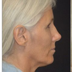 Dr. David's La Jolla Lift is an ideal procedure for patients who want to look as young as the feel. #sandiego #facelift #fattransfer #lajolla #plasticsurgeon #plasticsurgery #transformation #lajollalocals #sandiegoconnection #sdlocals - posted by Roy David, MD  https://www.instagram.com/roydavidmd. See more post on La Jolla at http://LaJollaLocals.com