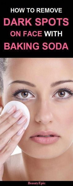 6 Easy Ways to Remove Dark Spots with Baking Soda Naturally - Diy Jewelry Easy Sun Spots On Skin, Black Spots On Face, Brown Spots On Hands, Age Spots On Face, Spots On Legs, Baking Soda For Hair, Baking Soda Face, How To Get Rid, How To Remove
