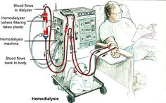 Call your nurse or dialysis technician if you have any of these 8 symptoms during or after treatment: 1. Chest pain  2. Fever or chills   3. Nausea or vomiting   4. Shortness of breath   5. Headache or lightheadedness  6.Muscle cramps  7. Itching   8. Bleeding from the needle site