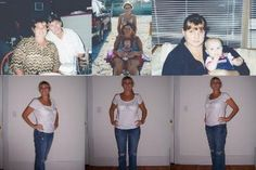 gastric sleeve before and after pics | Gastric Sleeve Before and After Pictures - Gastric Sleeve Surgery ...