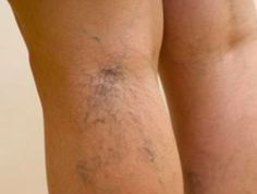 7 remedies to get rid of small varicose veins , Nutrition Jobs, Nutrition Guide, Sports Nutrition, Fitness Nutrition, Nutrition Month, Cheese Nutrition, Natural Pink Eye Remedy, Varicose Veins, Anti Cellulite