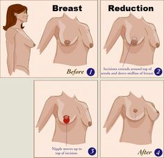 4 Good Reasons to Get a Breast Reduction