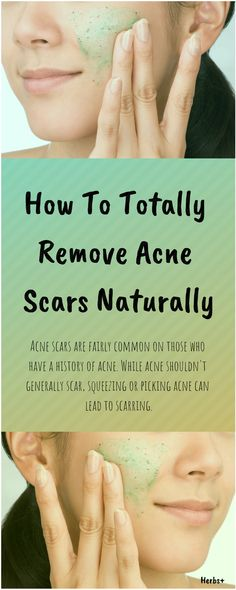 Natural Beauty Remedies Acne scars are fairly common on those who have a history of acne. While acne shouldn't generally scar, squeezing or picking acne can lead to scarring. Natural Beauty Remedies, Holistic Remedies, Health Remedies, Scar Remedies, Home Remedies, Back Acne Treatment, Acne Scar Removal, Remove Acne, Acne Scars