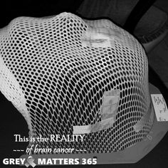 This is a radiation mask. It's REALITY for cancer patients