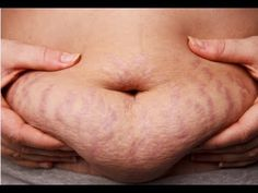 How to Get Rid of Stretch Marks? (Stretch Marks Removal Remedies)