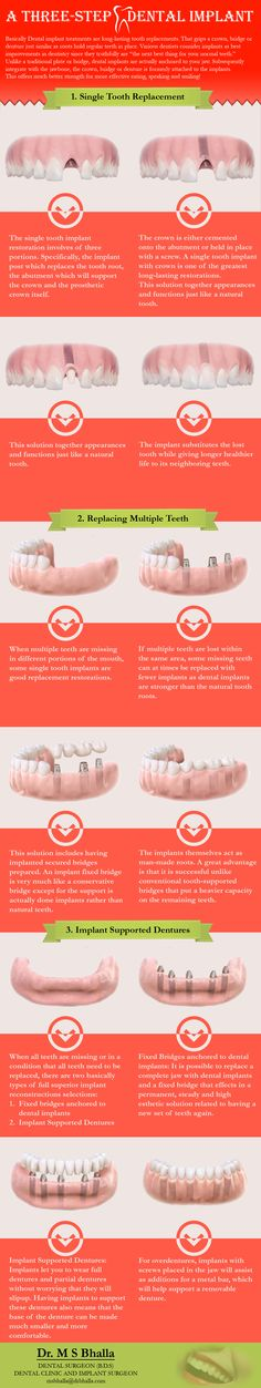 Bhalla Dental Clinic offers the best treatment for a dental implant, teeth replacement, root canal, gum disease, jaw bone surgery, tooth filling. Dr.