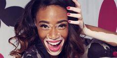 ANTM contestant and 'Vitiligo Spokesmodel' talks about beating the beauty bullies -Cosmopolitan.co.uk
