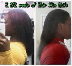 2 semaines et demie de cure de Hair Skin Nails
