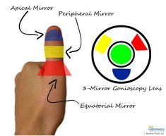 Choose the Correct Gonioscopy Mirror Using Your Thumb!
