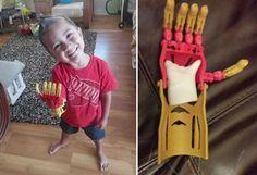 Com o intuito de trazer isso para crianças carentes, o engenheiro Aarton Brown, ao lado da organização E-Nabling The Future, começou a produzir e distribuir próteses inspiradas em super-heróis