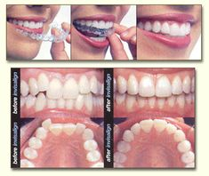Looking for the Best dentist in Gurgaon? Futela's dental Clinic for all types of dental treatment in Gurgaon. Book an appointment or call at 8860324079 for healthy teeth. Dental Surgeon, Dental Assistant, Dental Braces, Types Of Braces, Orthodontic Appliances, Perfect Smile, Dental Services, Teeth Care, Cosmetic Dentistry