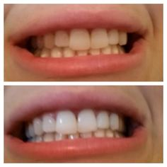 I know this picture can look a little crazy...< So Here me out..... lol Yes, you will be putting activated charcoal on your teeth to whi...