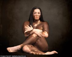 Model, business owner, and mother-of-four Iomikoe Johnson, 37, from Lake Charles, Louisiana has finally managed to embrace her vitiligo