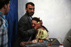 2. Platz KategorieGeneral News, Stories      Douma, östlich der Hauptstadt Damaskus, 11.Mai, 2015: Ein syrisches Mädchen wartet in einem behelfsmäßigen Krankenhaus auf seine Erstversorgung,  Das syrische Zentrum für politische Forschung hat ermittelt, dass mittlerweile 470.000 Menschen dem Bürgerkrieg in Syrien zum Opfer gefallen sind.      Abd Doumany/World Press Photo of the Year 2015