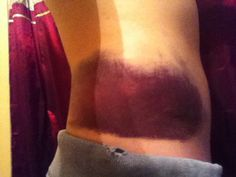 Craziest Bruise Ever!!!
