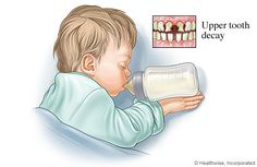 "Just say ""No"" to bottles in bed. Never put your baby to sleep with a bottle or sippy cup filled with milk, formula, fruit juice, or other sweet liquid.  The sugar in these beverages can cause cavities in your baby's teeth, leading to ""baby bottle tooth decay."" If you must give your baby a bottle to sleep fill the bottle with water instead. AGD at www.KnowYourTeeth.com  #Dentist #Hygienist"