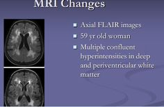 MRI Changes 59 year old woman
