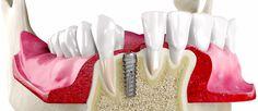 Einzelzahnimplantat Wenn ein Zahn verloren geht… Häufig kommt es vor, dass ein Patient den Zahnarzt aufsucht weil er bei einem Unfall einen Frontzahn verloren hat. Frontzähne spielen eine grosse Rolle nicht nur beim Lächeln und Sprechen eines Menschen, wo die sichtbar sind, sondern prägen auch den Gesichtsausdruck und das gesamte Aussehen eines Menschen. Beim Verlust… Icing, Outdoor Decor, People