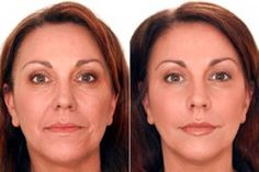 Plastic Surgery Before And After Face Images Liquid Facelift San Francisco Face Care, Body Care, Skin Care, Shape Magazine, Liquid Facelift, Tight Stomach, Nasolabial Folds, Rides Front, Anti Ride