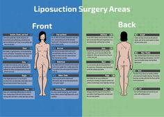 Popular Liposuction Surgery Areas Infographic Did you know you can get liposuction in other places besides your stomach? Areas that can have Liposuction include from under your chin down to ankles and almost anywhere in between. Thigh Liposuction, Liposuction Procedure, Weight Loss Before, Weight Loss Tips, Operation, Tummy Tucks, Weight Loss Surgery, Marketing, Health And Fitness