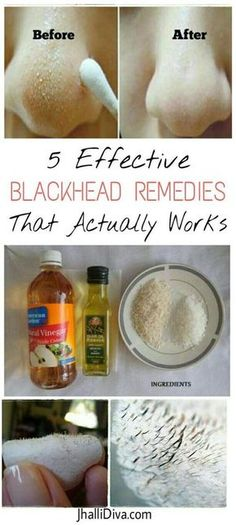 5 Effective Blackhead Removal Remedies That Actually Work Blackheads are the pesky tiny black spots which are found on your face as if theyve rented the space like a boss. Blackheads can be embarrassing. Just go through these Blackheads are mo Beauty Secrets, Beauty Hacks, Blackhead Remedies, Natural Blackhead Remover, Acne Remedies, Acne Treatment, Herbal Remedies, Get Rid Of Blackheads, Skin Tips