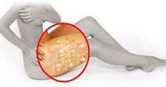 Celulita reprezinta celule de grasime liber plutitoare care se afla sub piele, oferindu-i un aspect asemanator cu o coaja de portocala. Exista un remediu natural extrem de eficient, care te ajuta sa scapi de celulile rapid. Ingredientul principal al remediului … Continuă citirea →