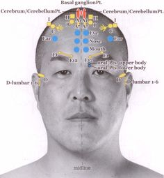 Yamamoto New Scalp Acupuncture (YNSA): Development, Principles, Safety, Effectiveness and Clinical Applications Acupuncture Points Chart, Acupressure Points, Yamamoto, Facial Therapy, Acupuncture Benefits, Reflexology Massage, Alternative Therapies, Holistic Medicine, Traditional Chinese Medicine