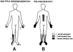 contrast between mononeuropathy and polyneuropathy